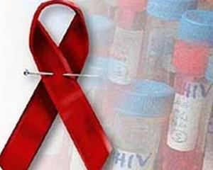 Día mundial de respuesta al VIH-SIDA.